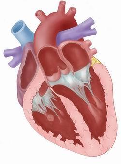 Arterial plaque,artery blockage,clogged artery,arteries,blockages,arterial disease,circulation problems,artery problems,plaque removal,plaque,chelation,chelation treatment,oral chelation,iv chelation,blood pressure problems