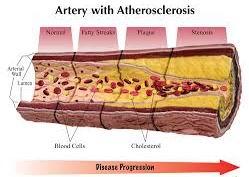 Atherosclerosis, Coronary Artery Disease,Carotid Artery Disease,Peripheral Artery Disease